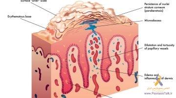 پسوریازیس چیست